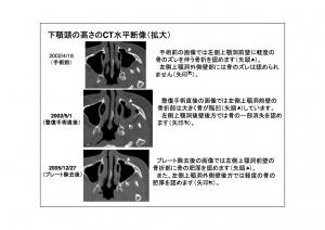 CT画像比較(位置合わせ画像)9-10