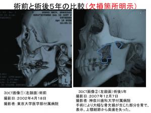 術前と術後5年比較画像1