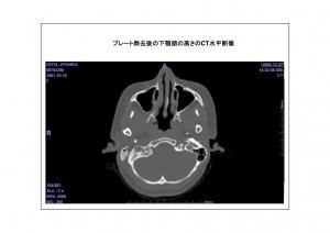 CT画像比較(位置合わせ画像)7-8
