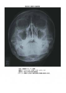 術前:副鼻腔ウオーター画像