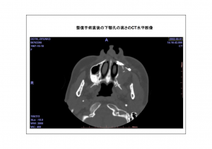 CT画像比較3-4
