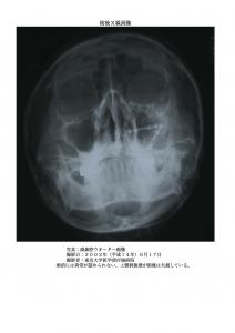 術後:副鼻腔ウオーター画像