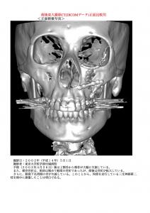 術後3DCT正面