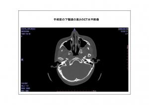 CT画像比較(位置合わせ画像)5-6