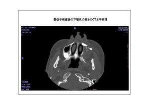 CT画像比較(位置合わせ画像)3-4