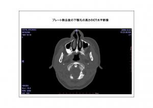 CT画像比較(位置合わせ画像)4-5