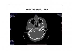 CT画像比較5-6