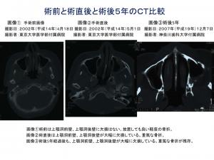 術前と術直後、術後5年の2次元CT比較1