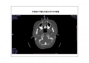 CT画像比較2-3