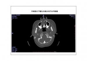 CT画像比較(位置合わせ画像)2-3