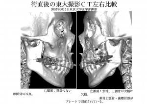 術後顔面骨左右比較1