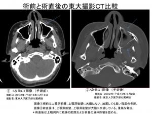 術前と術後の東大撮影2次元CT比較1