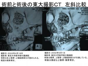 術前と術後の東大撮影CT比較(撮影位置:顔面左斜め)1