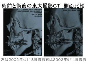 術前と術後の左顔面骨比較1