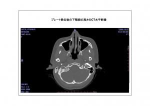 CT画像比較7-8