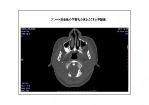 CT画像比較4-5